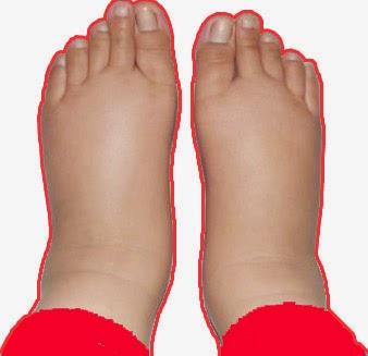 feet Swell