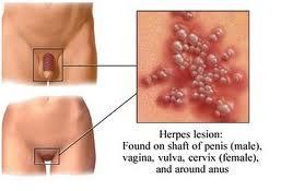 Resultado de imagen de imaxes herpes xenitales