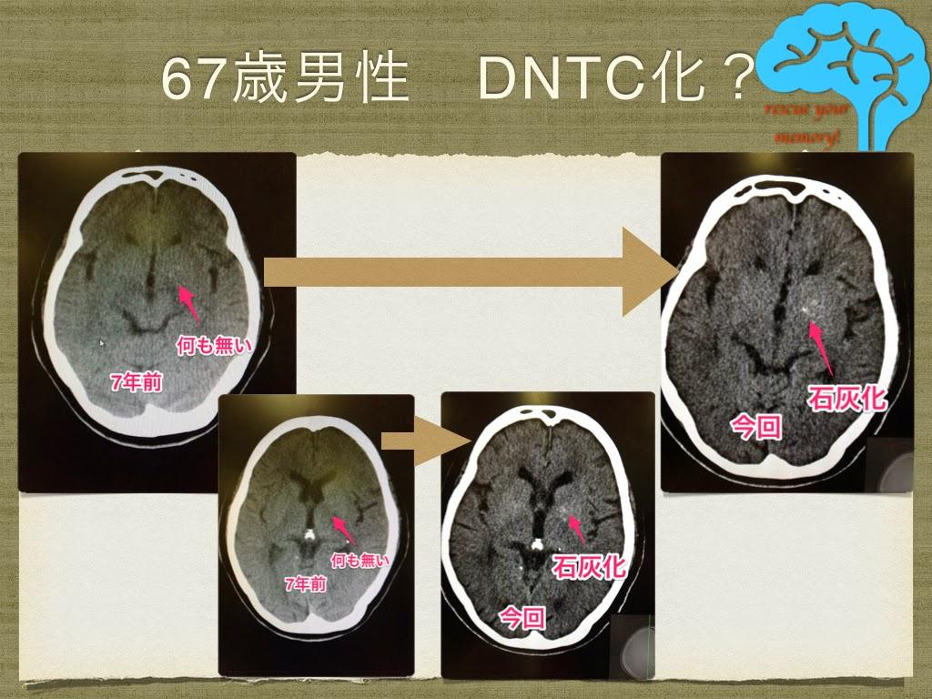 DNTC 易怒性の高い67歳男性