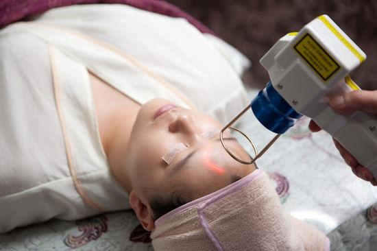 Cách trị nám da bằng tia laser được khá nhiều chị em tin dùng