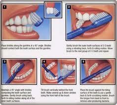 Tips Cara Menyikat Gigi yang Sehat dan Benar