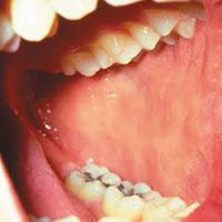 Kunci Penyakit Sistem Imun Ada di Pipi Info Kesehatan Indonesia