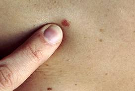 Skin Cancer Picture