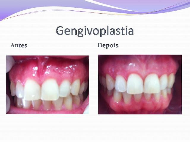Gengivoplastia+2 - Gengivoplastia - Caso Clínico II