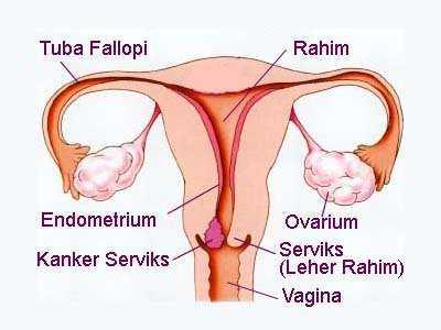 gejala tanda tanda ciri ciri kanker serviks atau leher rahim, mengobati kanker leher rahim, kanker rahim, bagaimana gejala kanker rahim