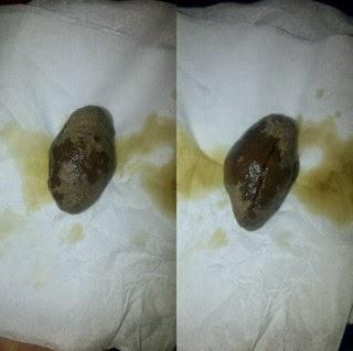Batu Kebal Sosrobahu