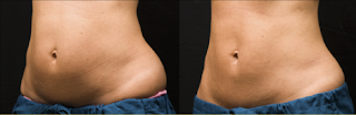 coolsculpting resultados