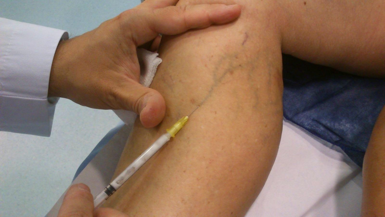 La trombosis a la hemorroide detraleks