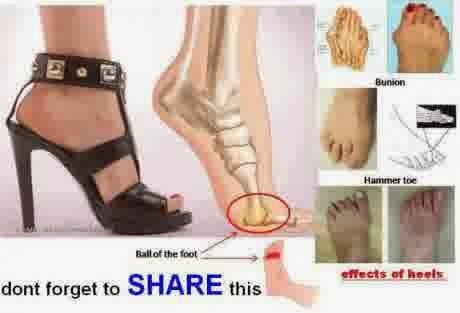 Memakai Sepatu High Heels Mengakibatkan Persoalan Kerusakan Tulang Juga Engsel