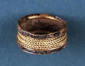 Metaloplastyka połączona z wire-wrapping