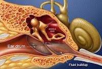Realidad Infecciones del Oído Síntomas Detalles Imagen
