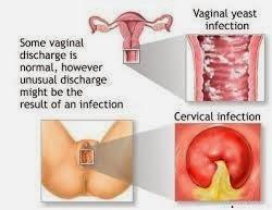 obat tradisional herbal untuk mengatasi keputihan pada wanita