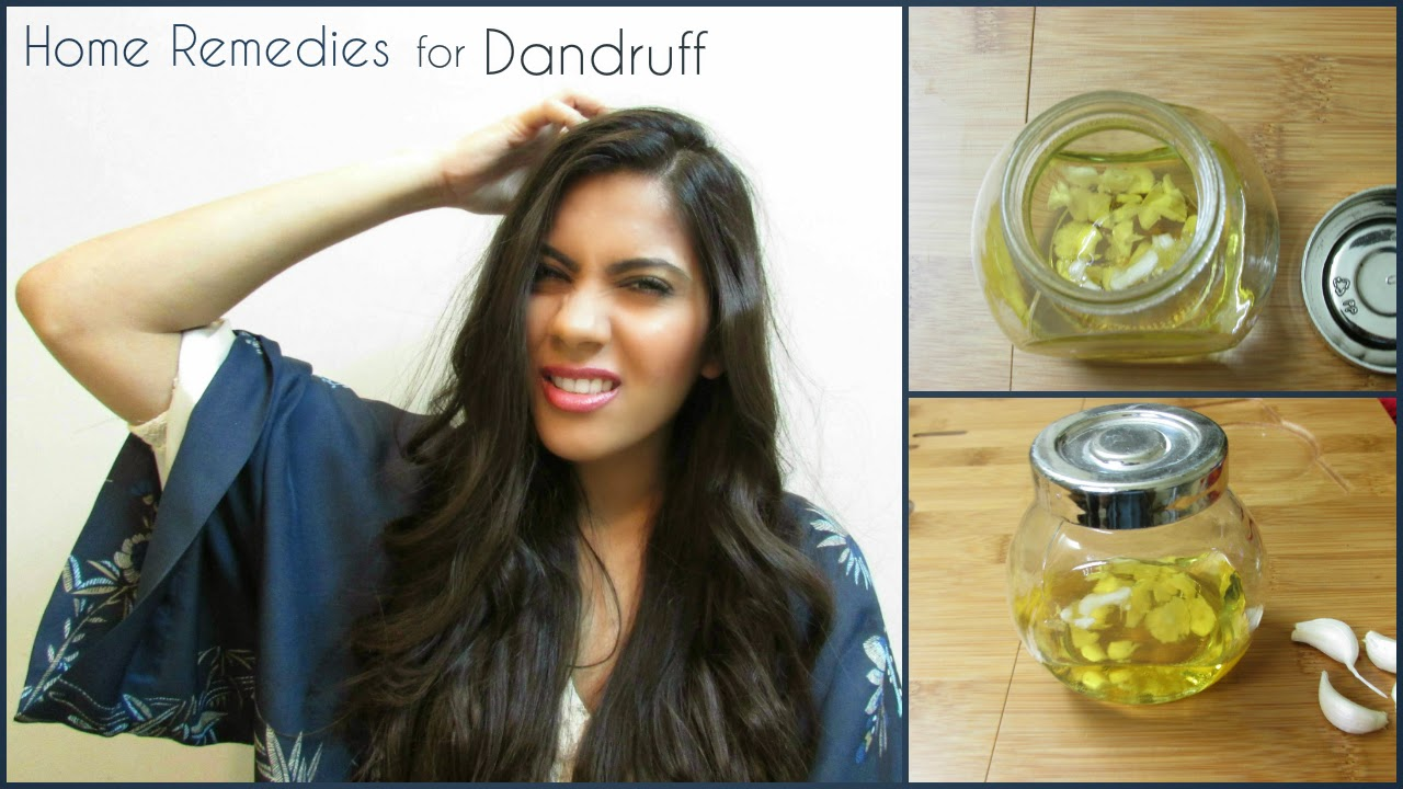 garlic, garlic oil, garlic oil for dandruff, garlic oil for hair growth, Home remedies for dandruff, home remedies for itchy scalp, home-remedies, how to treat dandruff at home, itchy scalp,