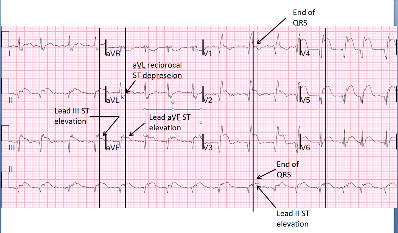Dr  Smith U0026 39 S Ecg Blog  Large Transmural Stemi With