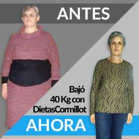 adelgazar 40 kilos dietas cormillot antes despues