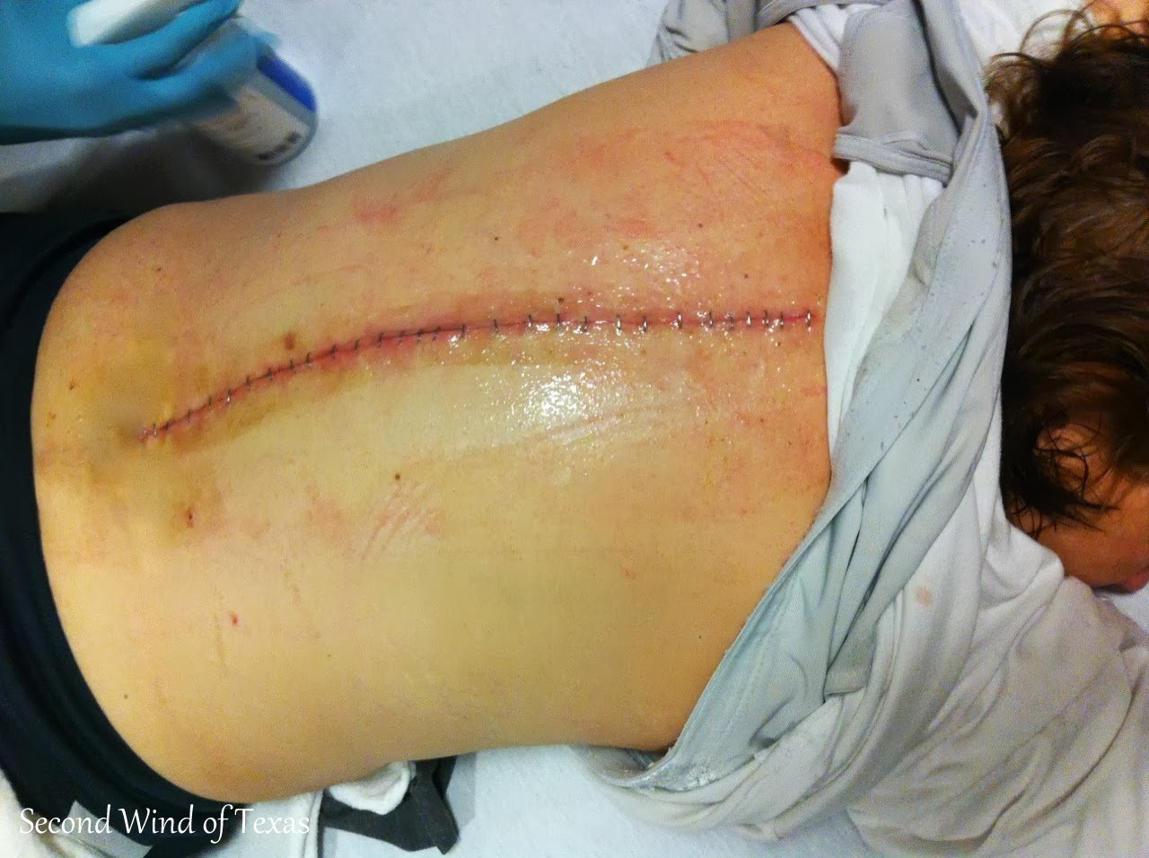 how to break down scar tissue after surgery