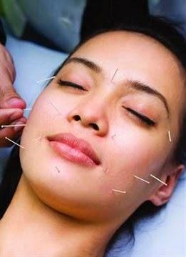 5 Manfaat Terapi Akupuntur Bagi Kesehatan