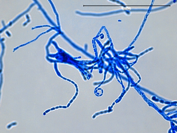 Septate Hyphae With Arthroconidia at The Septate Hyphae