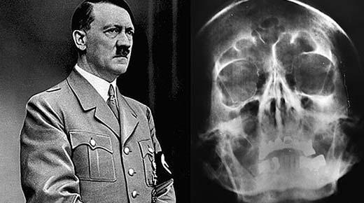 Historiadores admiten finalmente que Hitler no se disparó en la cabeza