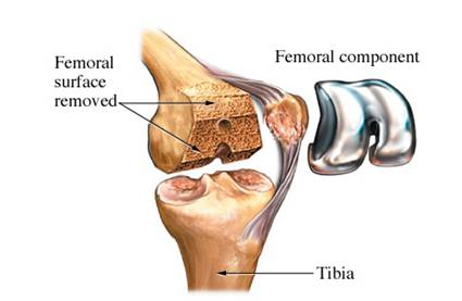 protese joelho