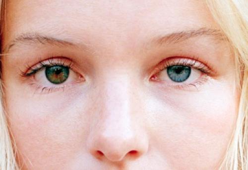 Image Gallery heterochromia iridis