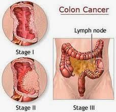 Cara Menyembuhkan Kanker Usus