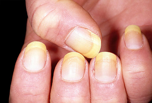 Yellowing Of The Fingernails 100