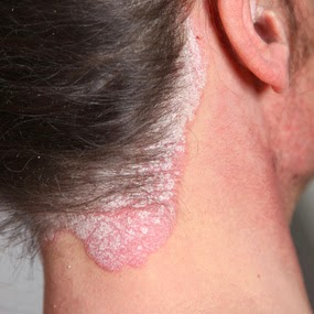 About Psoriasis disease details