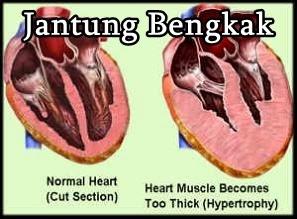 Obat Herbal Penyakit Jantung Bengkak