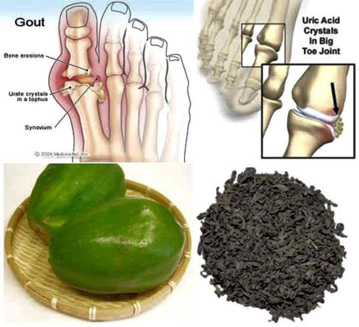 Let Us All Be Connected Papaya For Uric Acid And Gout Problem