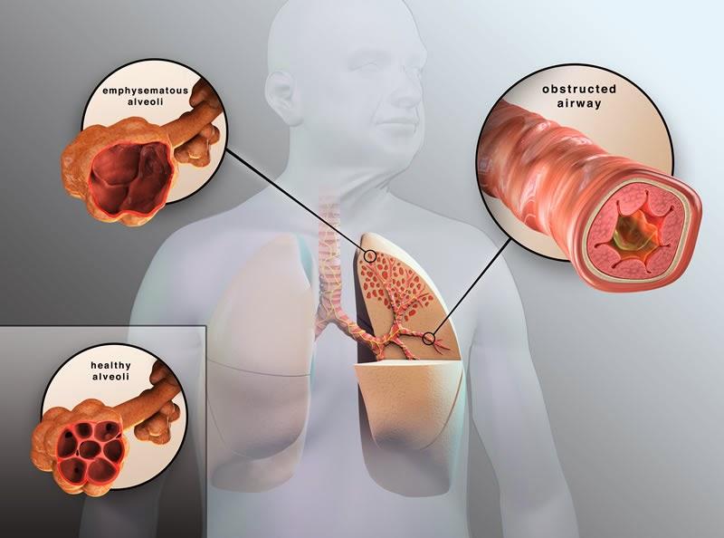 copd là biến chứng của viêm phế quản