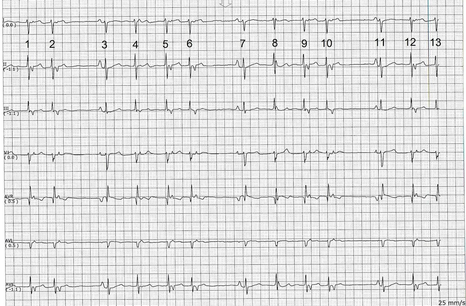 ecg rhythms  another irregular rhythm with a pattern