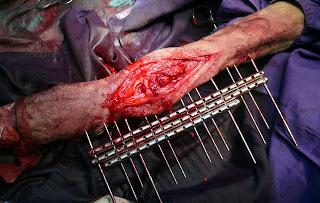 Durante la intervencion Pastor Alemán 7 años lesión carpal por mordedura