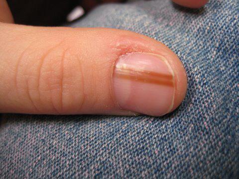 Меланонихия ногтя это