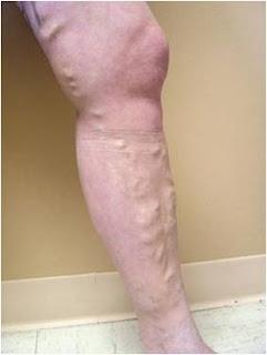 ما هي دوالي الساقين وما هي مسبباتها وما هو العلاج؟.