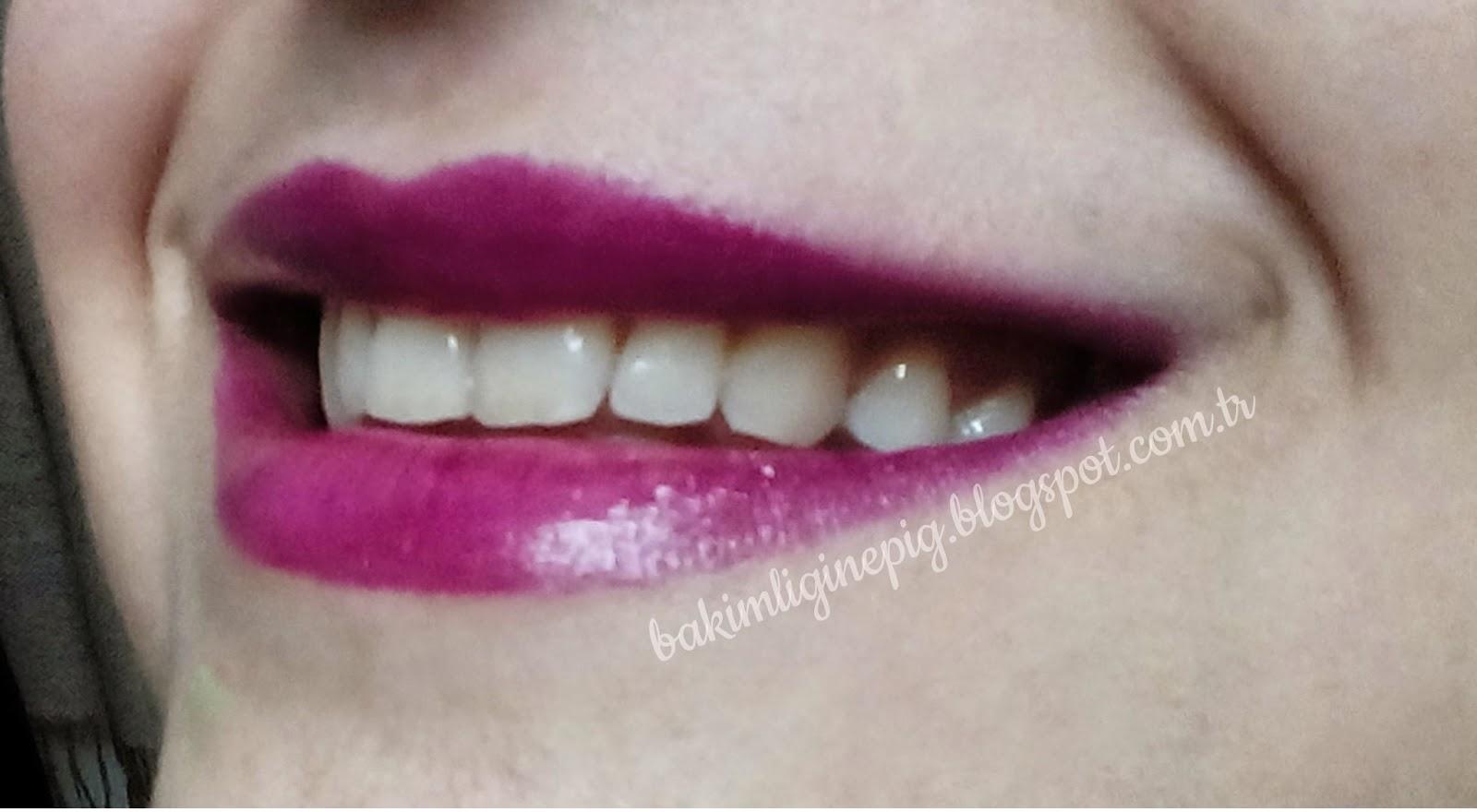 gülüş dişler