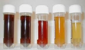 Penyebab Penyakit Kencing Darah dan Pencegahannya
