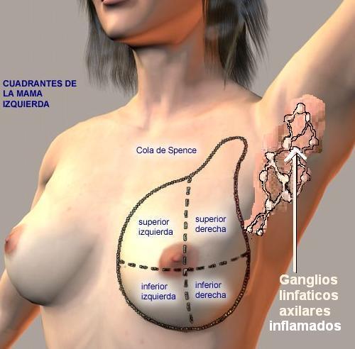 Ruptura debajo del hueso del seno izquierdo