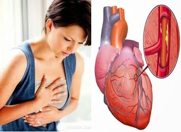 Obat Jantung Rematik Tanpa Operasi