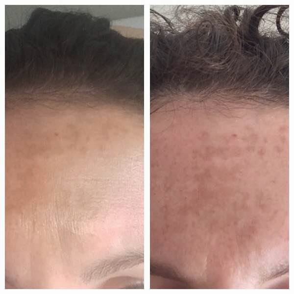hyperpigmentation cream reviews