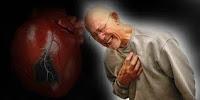 tips mencegah penyakit jantung koroner, penyakit jantung koroner, mencegah jantung koroner