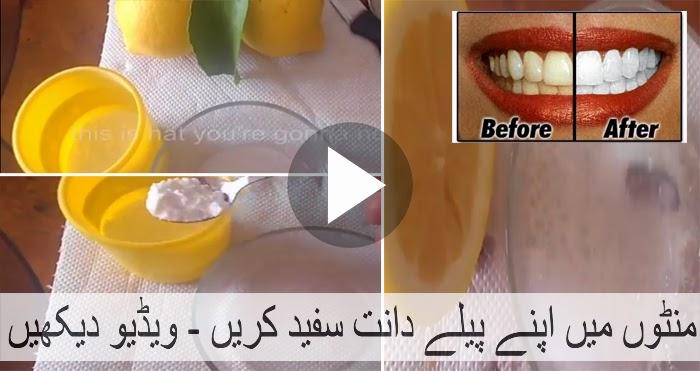 how to get white teeth like celebrities
