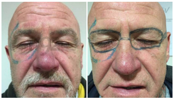 UK Man Wakes Up Drunk with Ray-Ban Sunglasses Tattooed to His Face