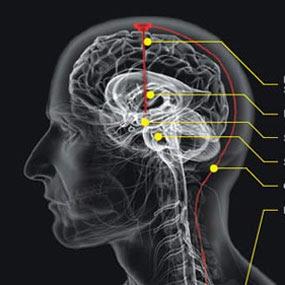 Otak Rusak Bisa Disebabkan 10 Kebiasaan Sepele Ini