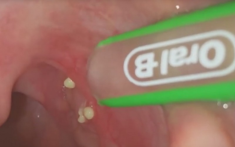 Tonsils Bad Breath Cure
