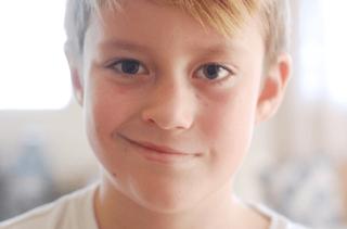 Tratamento multidisciplinar para a Paralisia Facial