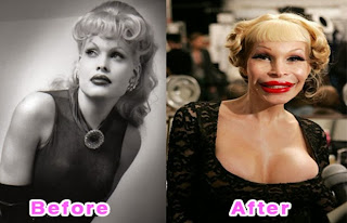 Examples of Worst Plastic Surgery