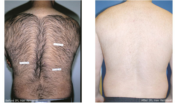The best permanent hair removal cream for men