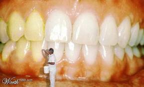 Penyebab Gigi Menjadi Kuning Dan Cara Mengatasinya Berita Harian