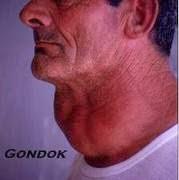 Obat Gondok